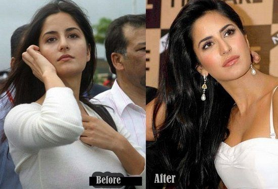 Katrina Kaif Before And After Nose 10 Actresses Before an...
