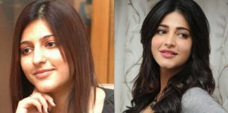 Actress before and after lip job, cosmetic surgery
