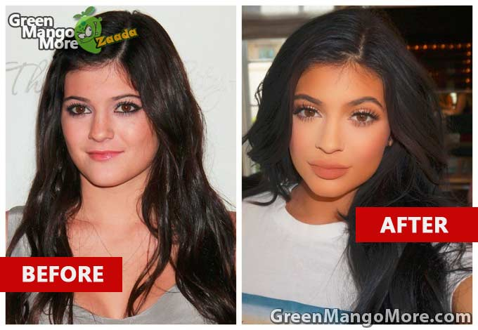 Kylie Jenner Before and after image